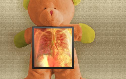 osset_pneumonia_blog